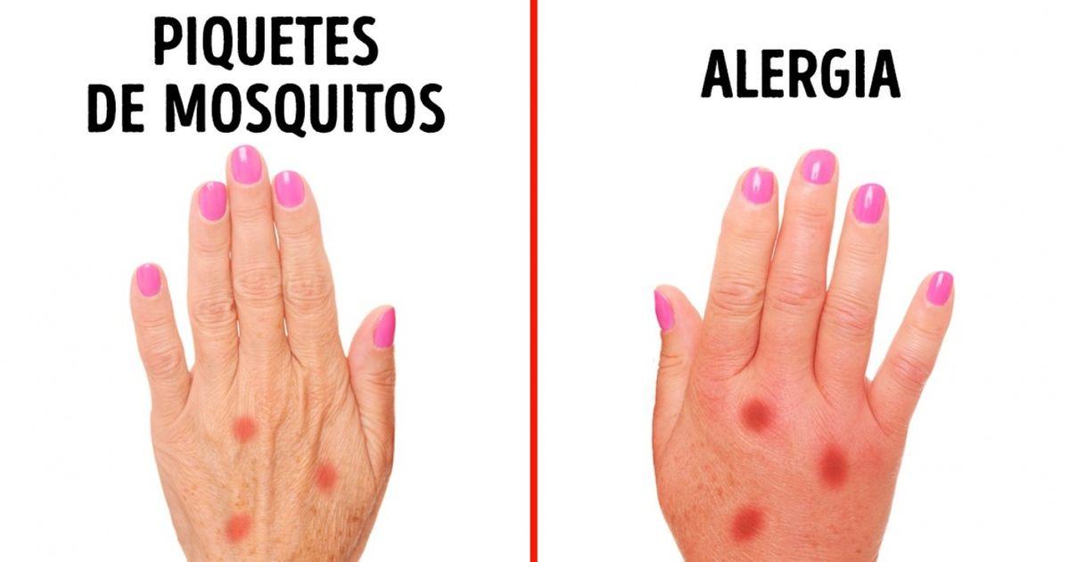 3Señales que teayudarán adetectar una alergia