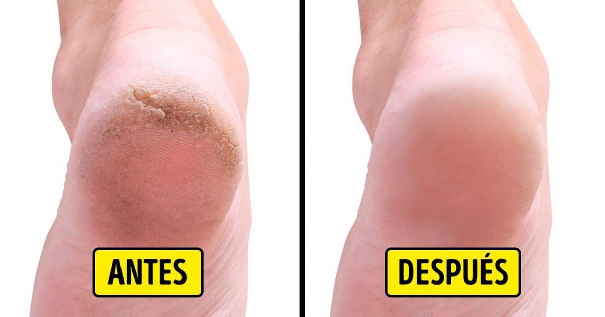 10 Remedios caseros para sanar los talones agrietados y tener pies hermosos