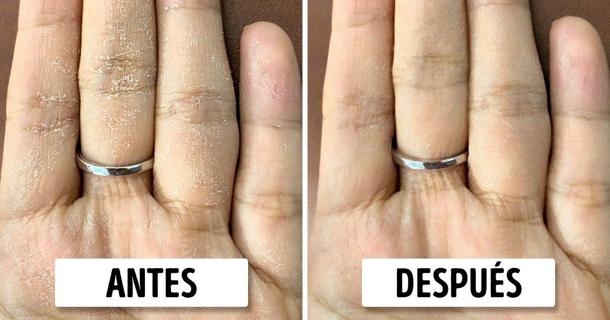 5 Trucos de cuidado de la piel para manos secas que funcionan de maravilla