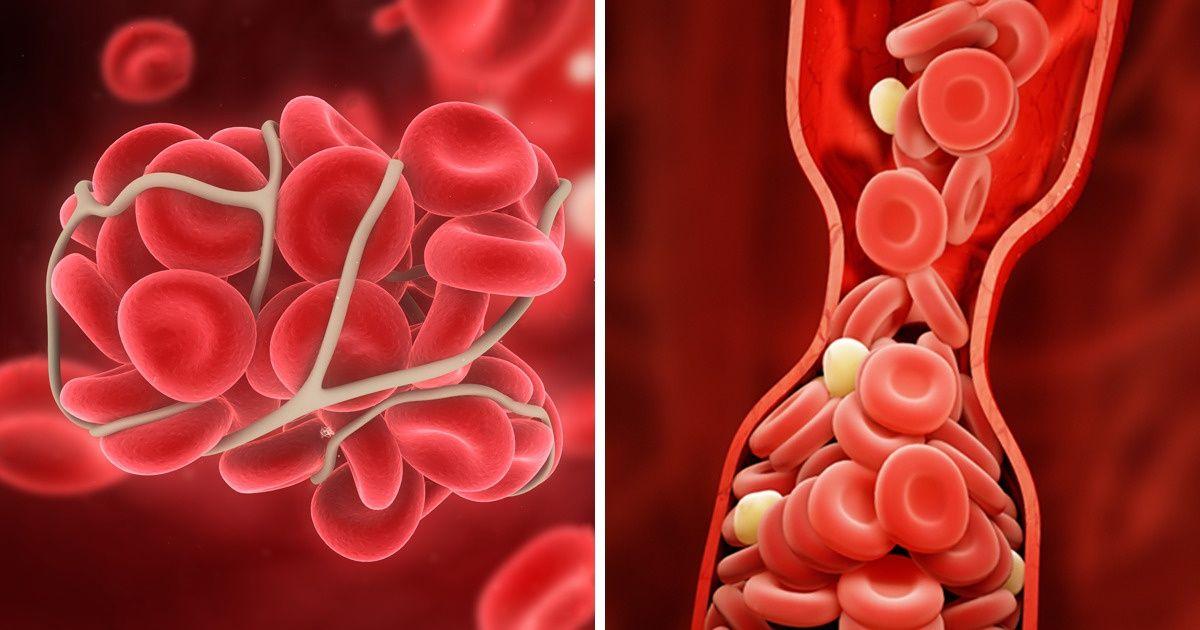 10 Maneras de prevenir los coágulos de sangre que pueden salvar tu vida