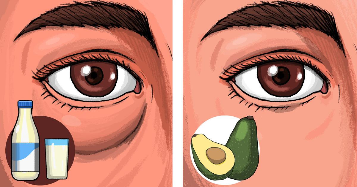 6 Alimentos que pueden causar hinchazón en tus ojos y 4 que pueden solucionarla