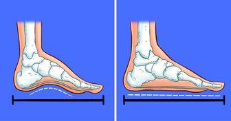 """Por qué los pies """"crecen"""" con la edad, y cómo puedes evitarlo"""