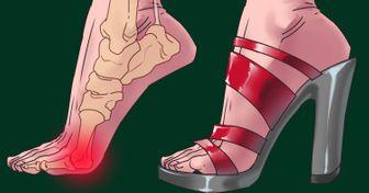 Los tacones altos no solo dañan tus pies sino que también son peligrosos para otras partes de tu cuerpo