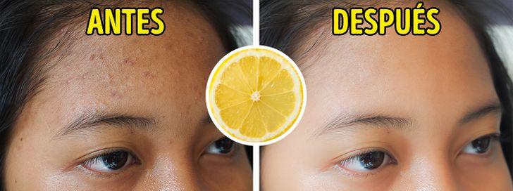 7 Alimentos que reducen las cicatrices del acné
