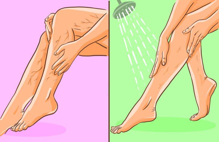7 Ejercicios para reducir las arañas vasculares y las várices
