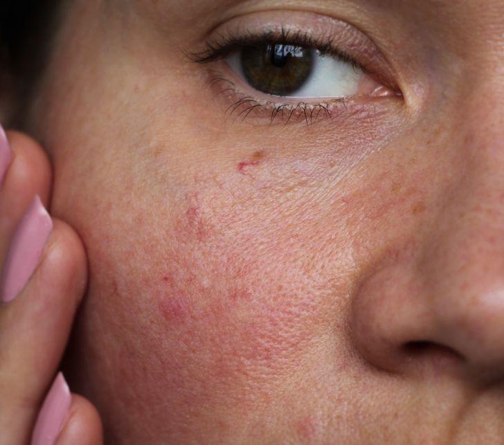 5 Maravillas que una ducha fría puede hacer por tu piel