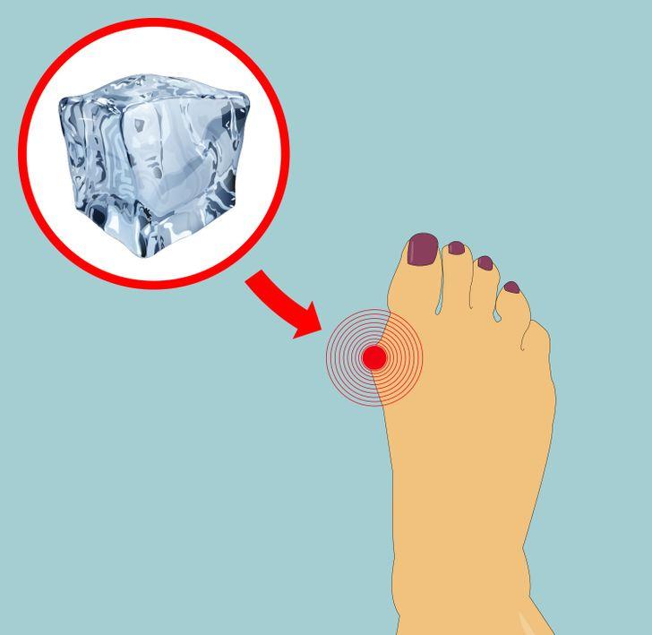 6Maneras sencillas dereducir tus juanetes sin cirugía