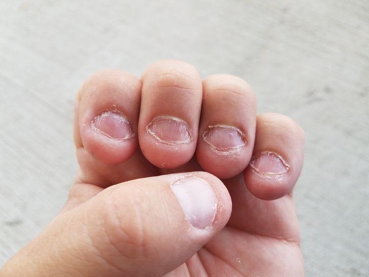 10 Consejos para dejar de comerte las uñas de una vez por todas