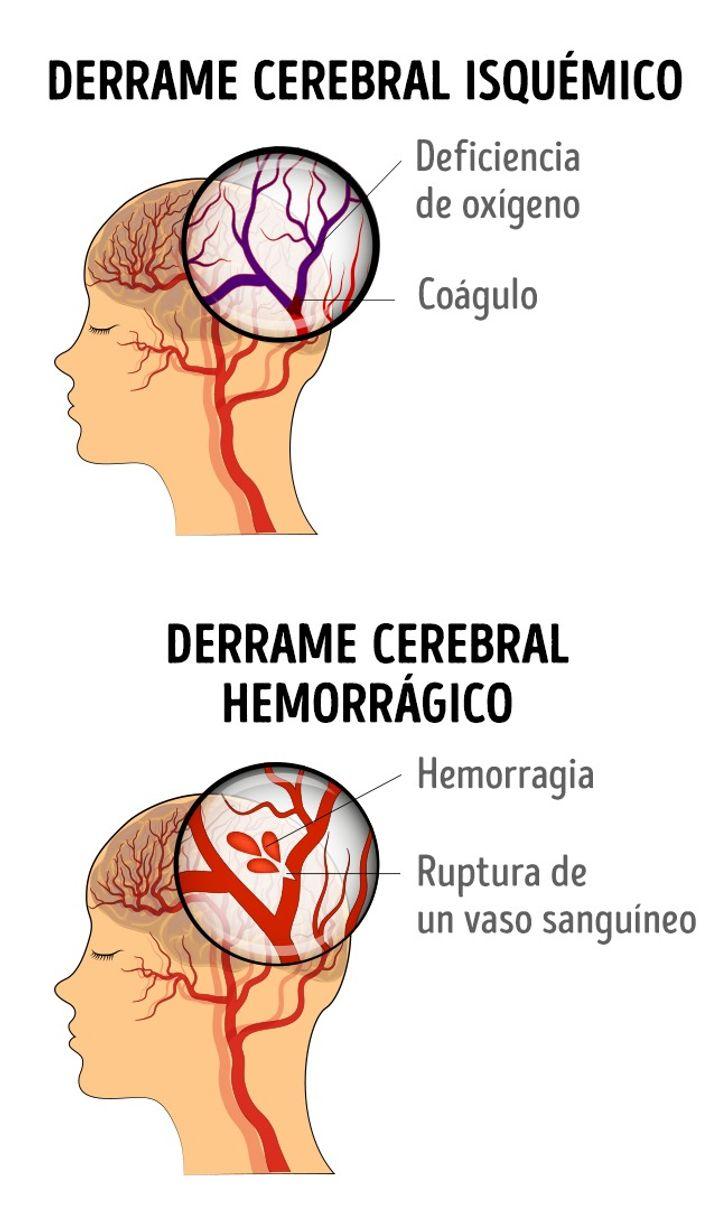 7Síntomas que teayudarán aidentificar derrames cerebrales enmujeres
