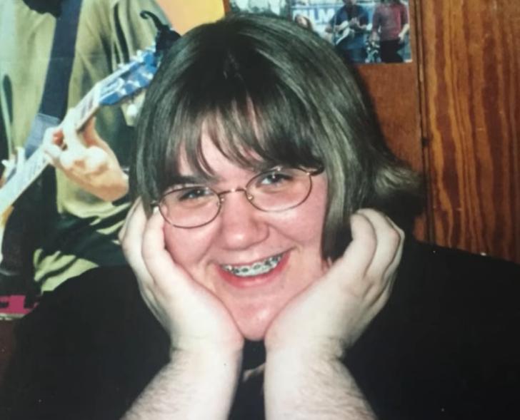 Una mujer con síndrome de ovario poliquístico que aprendió a amar su vello corporal